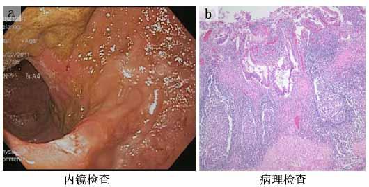 患者乙,女性,46岁,4年前因慢性溃疡性结肠炎行ipaa式修复性结直肠