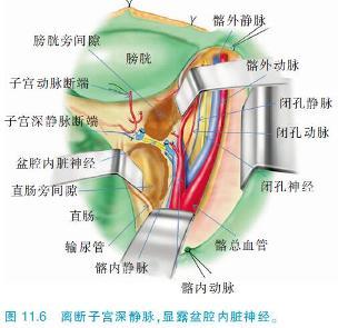 小腹子宫结构图片