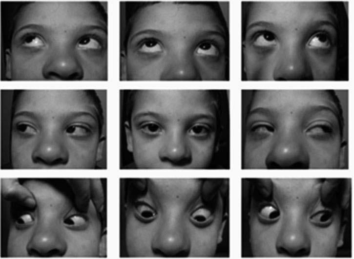 女人自u系的性交姿势图_【病案】结核性脑膜炎导致单纯第四颅神经麻痹